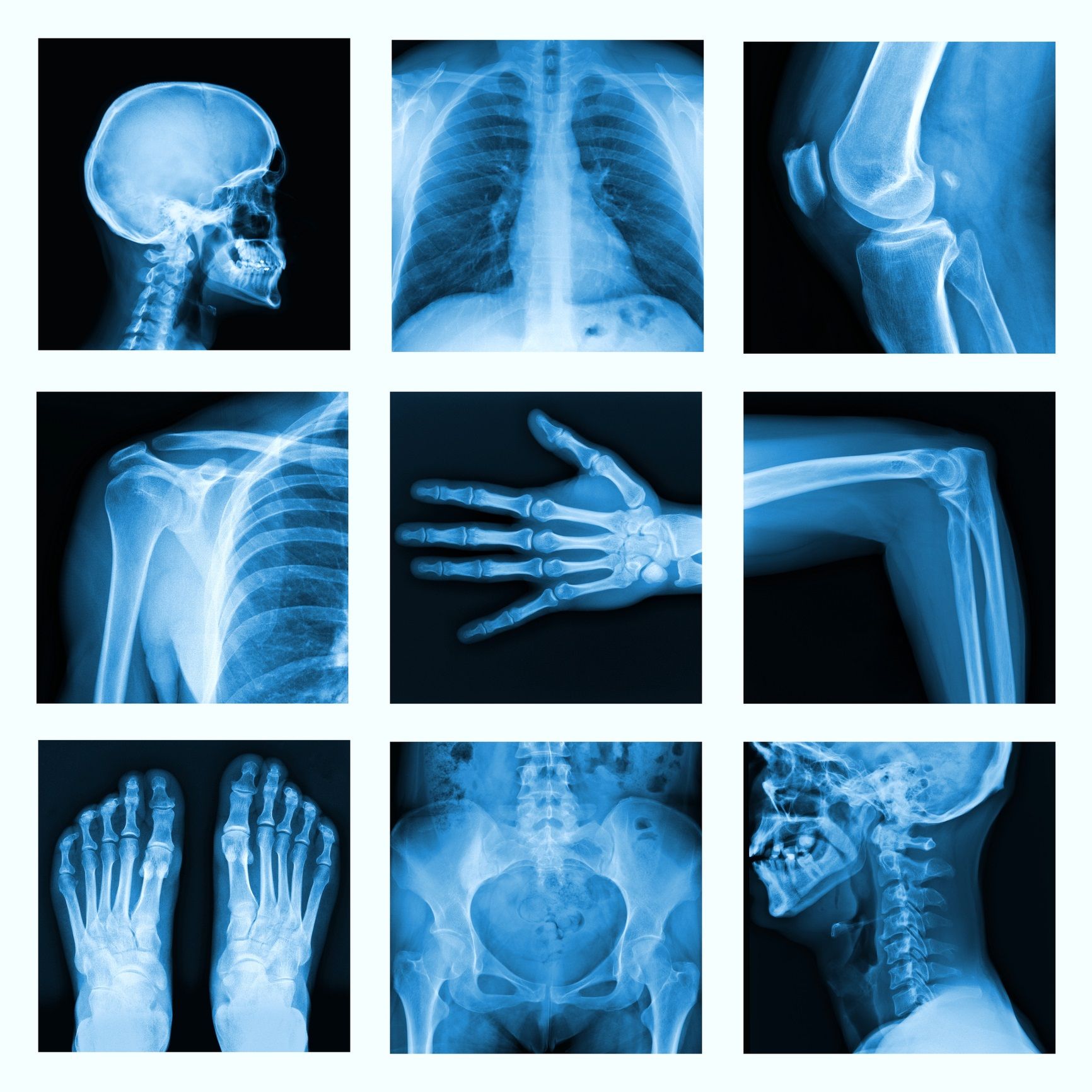 Collage of many X-rays in very good quality