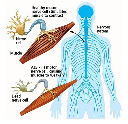 Graphic of nerve cells and how ALS progresses